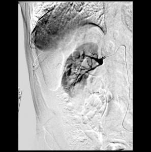 Selektive DSA der rechten Nierenarterie
