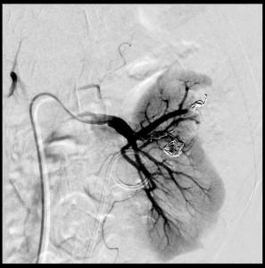 Coilausfüllung eines op-bedingten Aneurysma spurium mit AV-Fistelverbindung und zusätzliches Coiling der zuführenden Segmentarterie