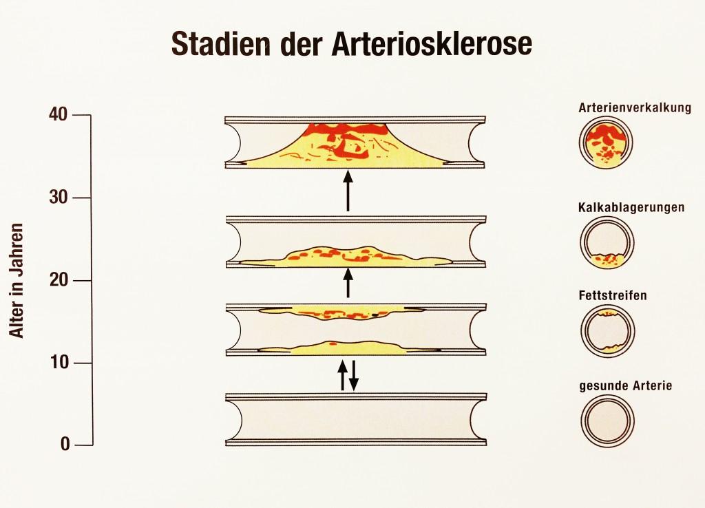 stadien_der_arteriosklerose