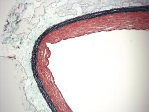 PCB_SFA_Histology72