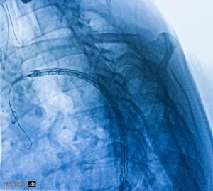 Röntgenkontrolle der Prothesenplatzierung in der thorakalen Aorta