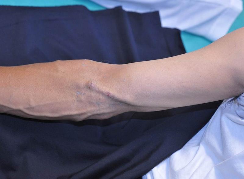 Ausgereifter Shunt 1 Jahr nach dem Eingriff mit dem endoAVF-Kathetersystem