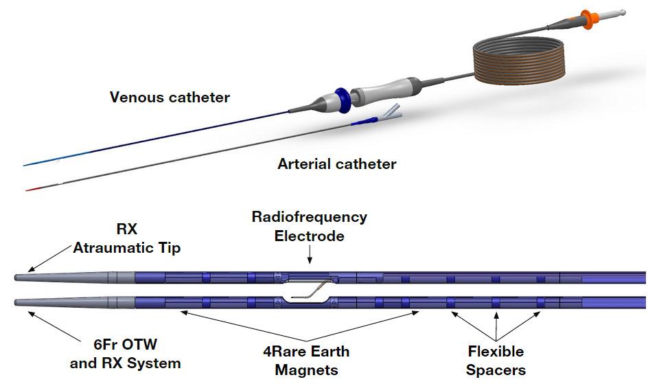 Schematische Darstellung TVA Medical endoAVF