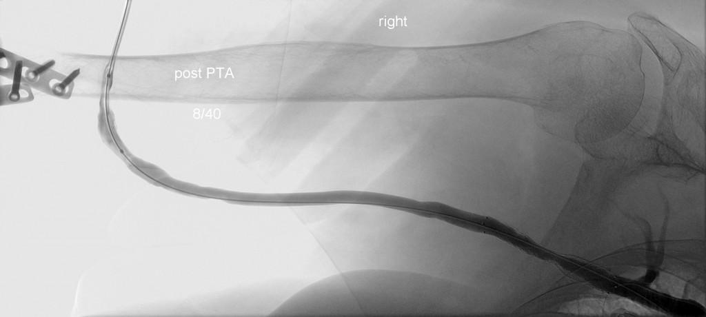 Konrolle nach beiden PTA