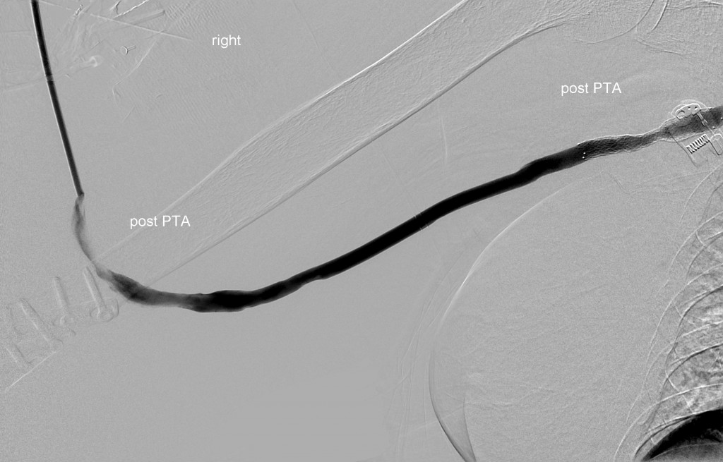 Post PTA gutes hämodynamisches und morphologisches Resultat